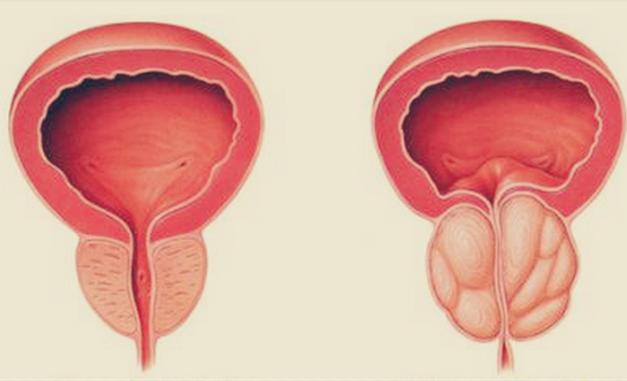 prostata bezi