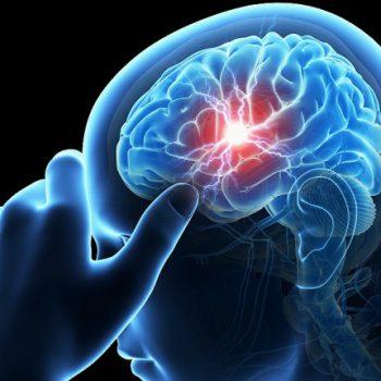 Epilepsiya kasalligi