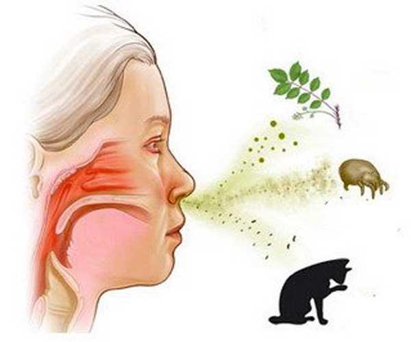 Allergiyani davolash
