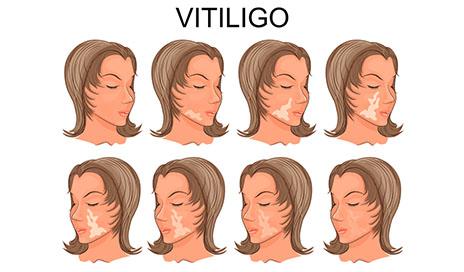 vitiligoni davolash