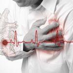 Miokard infarkti kasalligi
