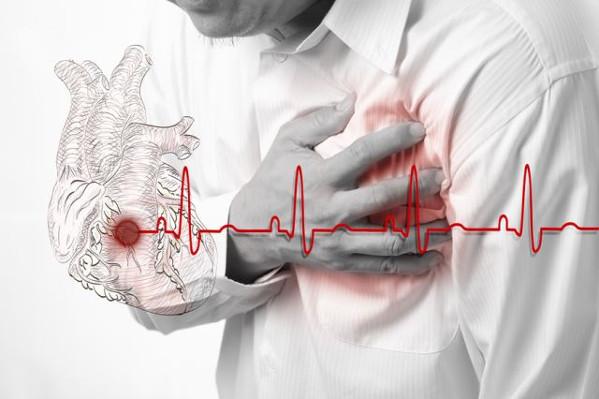 Miokard infarkti