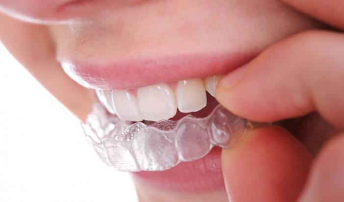 Byugel, plomba va dental implantatlar