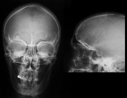 Photo of Bosh suyak osteomalari
