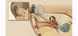 Koxlear implantatsiyasi va ajoyib natijalar