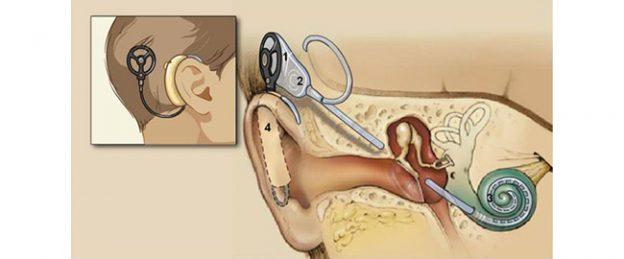 Photo of Koxlear implantatsiyasi va ajoyib natijalar