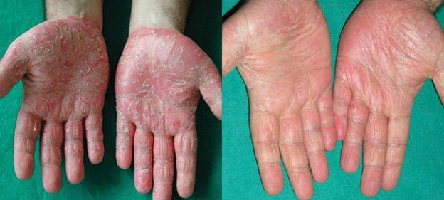 Allergik dermatit