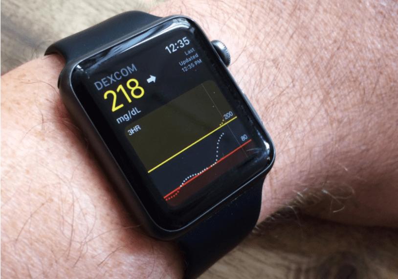 Photo of Innovatsiya:  Apple Watch insonda qandli diabet bor yoki yo'qligini aniqlaydi