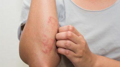 Photo of Dermatit qanday kasallik?