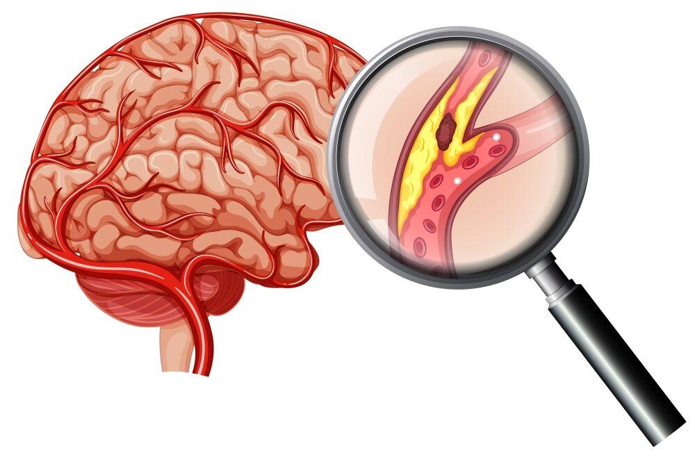 Qon tomirlar aterosklerozi